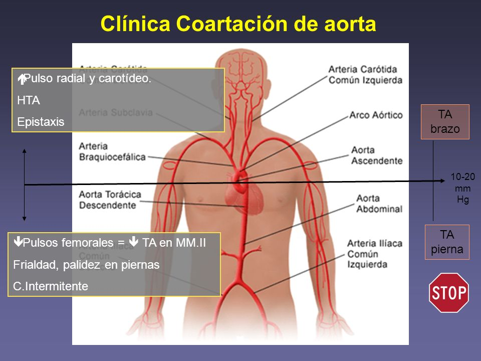 Clínica Coartación de aorta