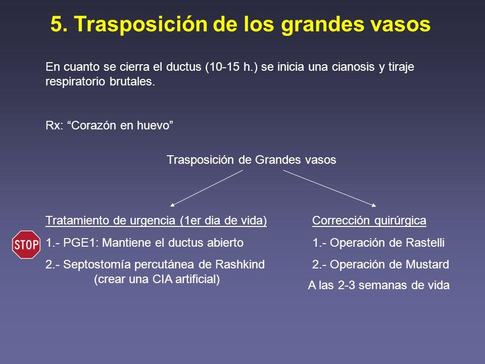 5. Trasposición de los grandes vasos