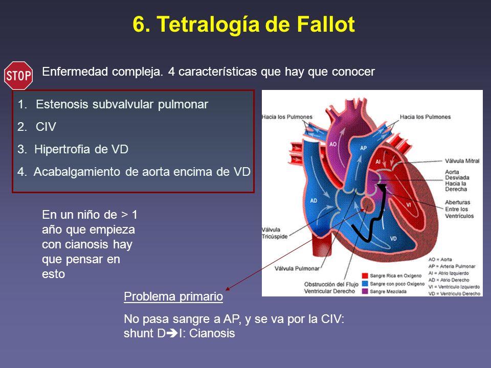 6. Tetralogía de Fallot Enfermedad compleja. 4 características que hay que conocer. Estenosis subvalvular pulmonar.