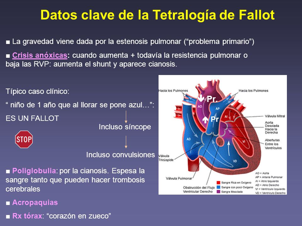 Datos clave de la Tetralogía de Fallot