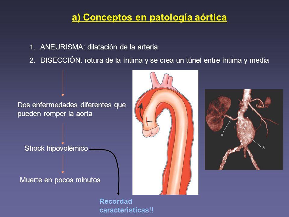 a) Conceptos en patología aórtica