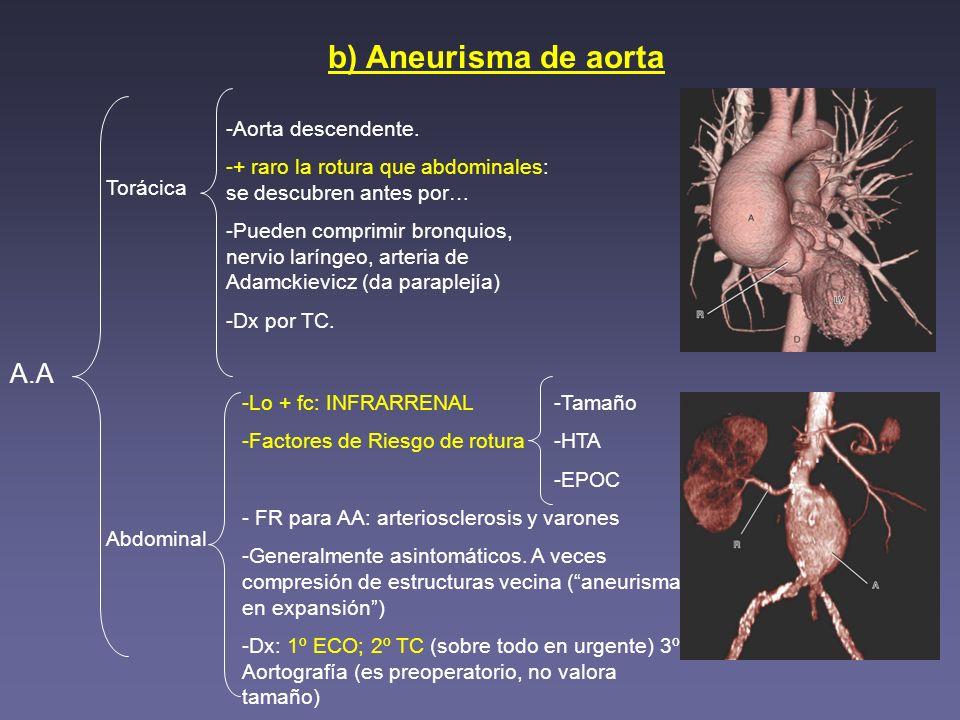 b) Aneurisma de aorta A.A Aorta descendente.