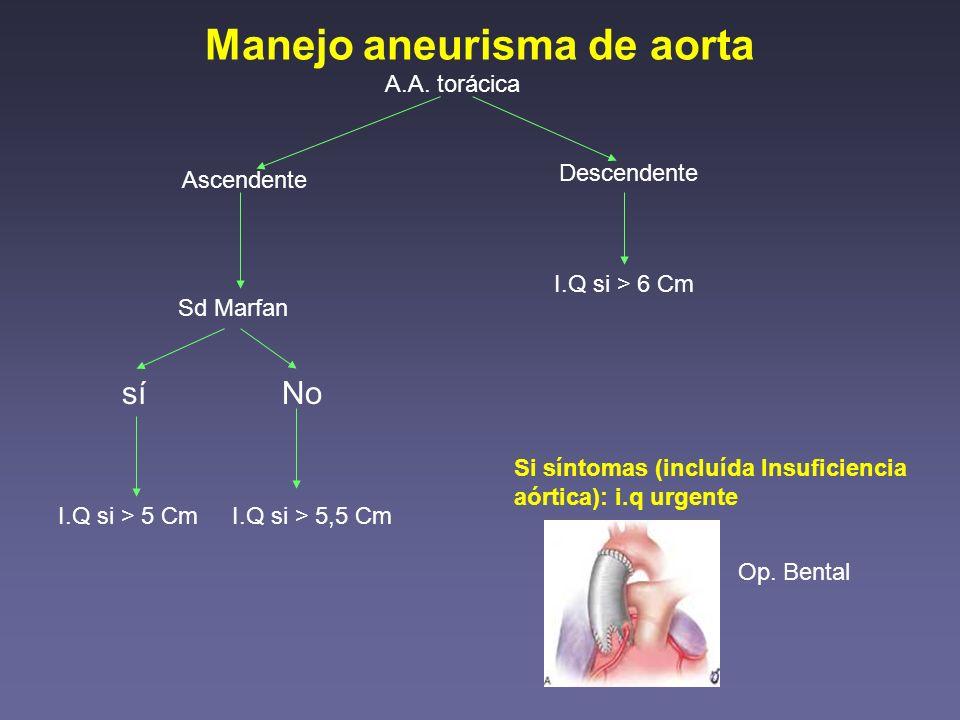 Manejo aneurisma de aorta