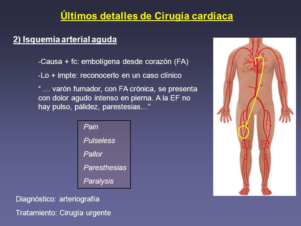 Últimos detalles de Cirugía cardíaca