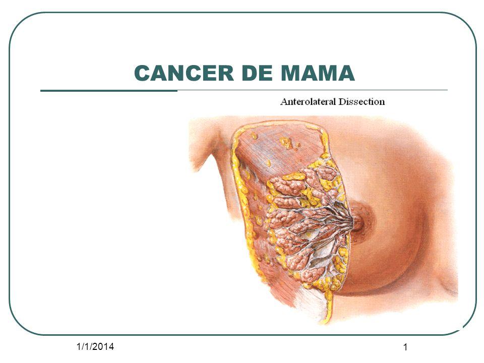 CANCER DE MAMA 3/23/2017