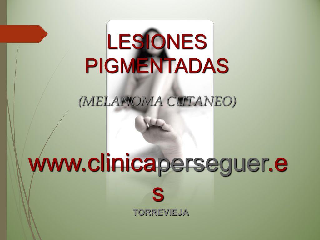 LESIONES PIGMENTADAS (MELANOMA CUTANEO) www.clinicaperseguer.es