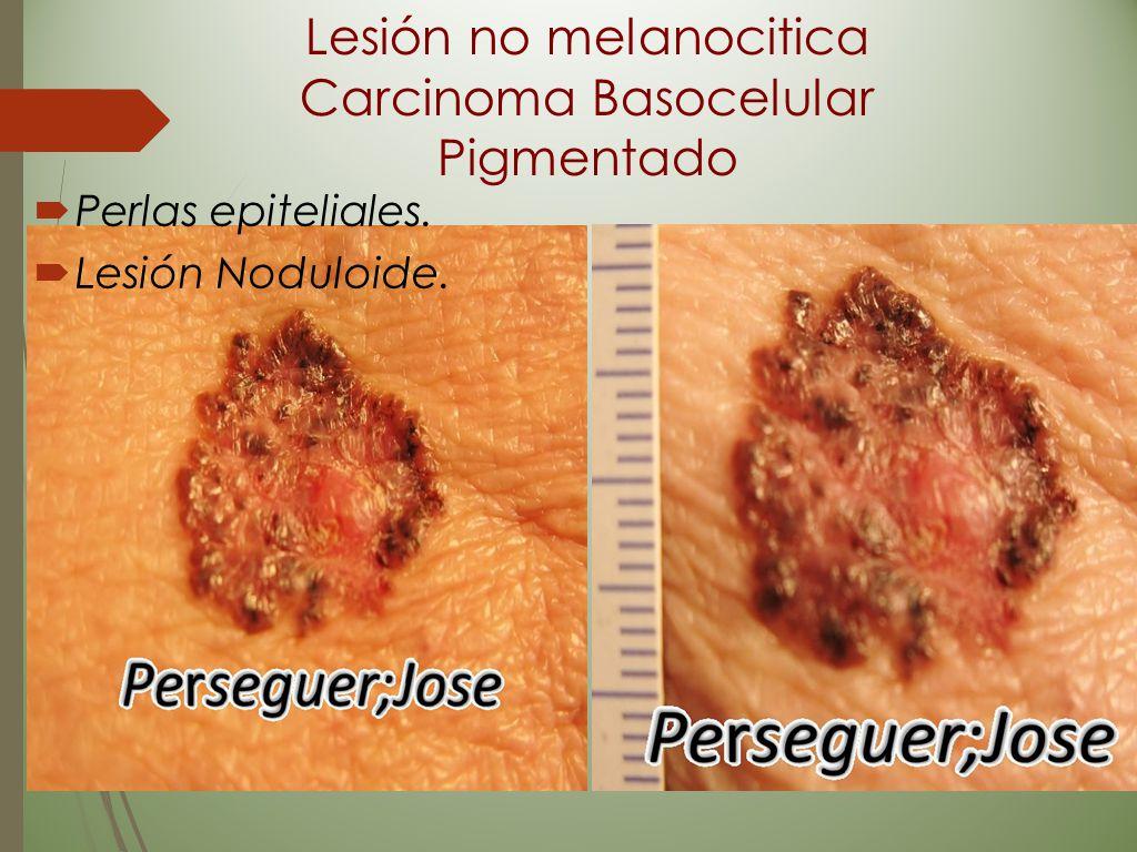 Lesión no melanocitica Carcinoma Basocelular Pigmentado
