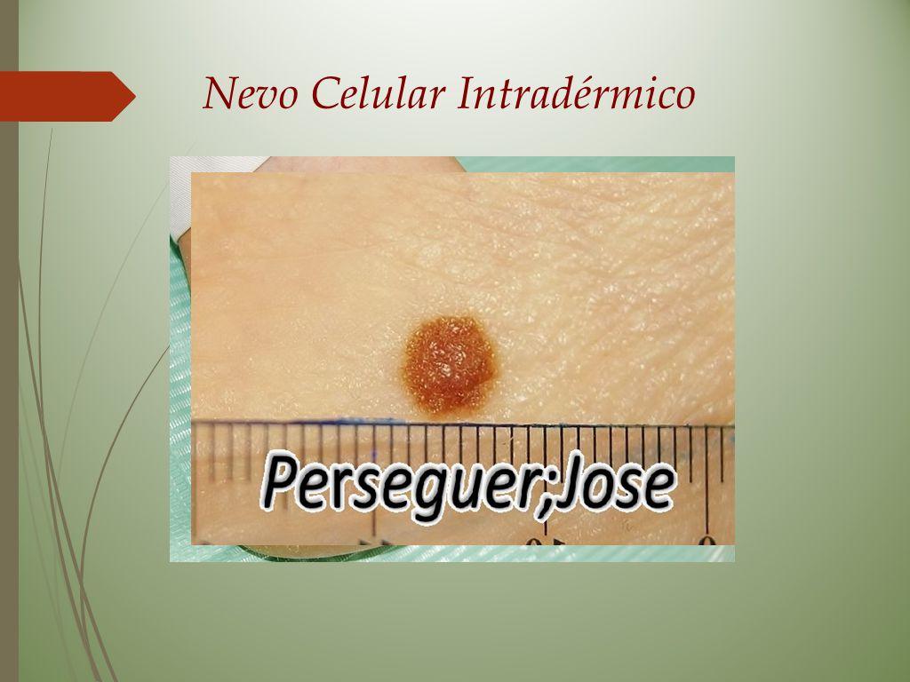 Nevo Celular Intradérmico
