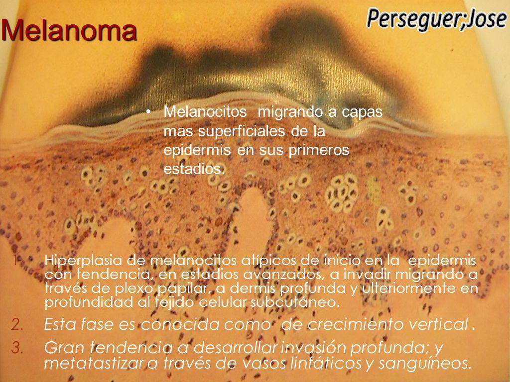 Melanoma Melanocitos migrando a capas mas superficiales de la epidermis en sus primeros estadios.
