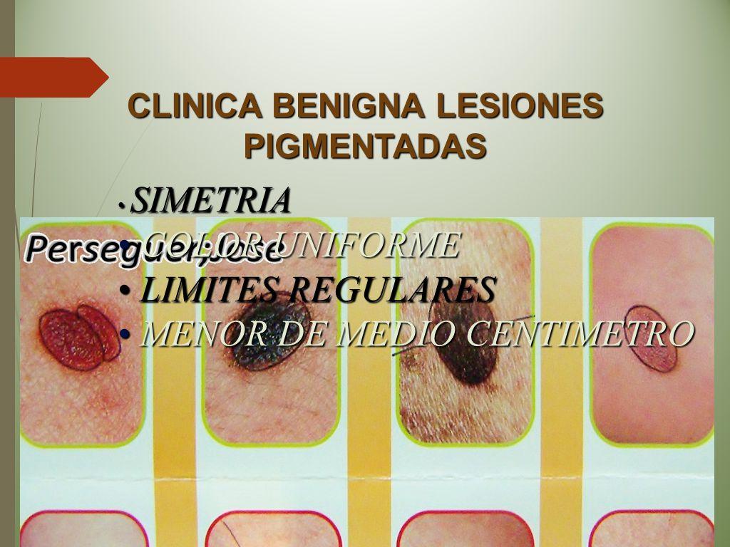 CLINICA BENIGNA LESIONES PIGMENTADAS