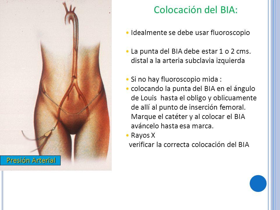 Colocación del BIA: Idealmente se debe usar fluoroscopio