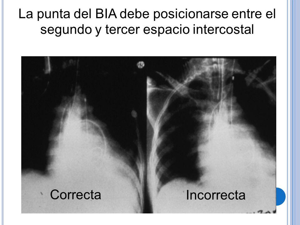 La punta del BIA debe posicionarse entre el segundo y tercer espacio intercostal