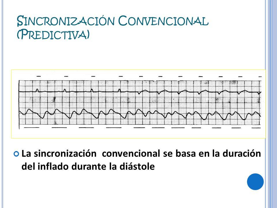 Sincronización Convencional (Predictiva)
