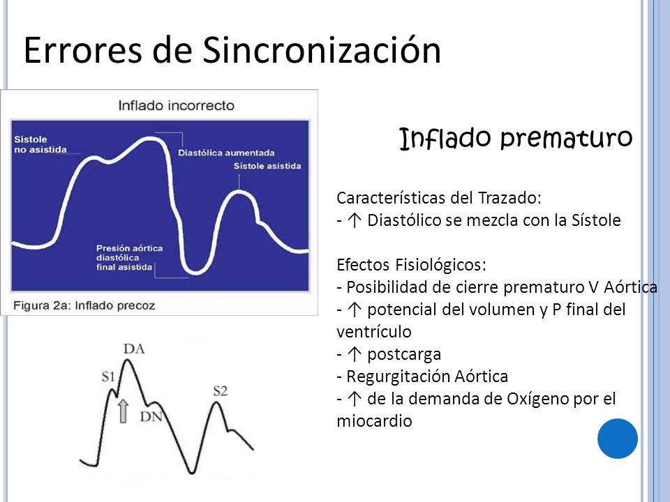 Errores de Sincronización