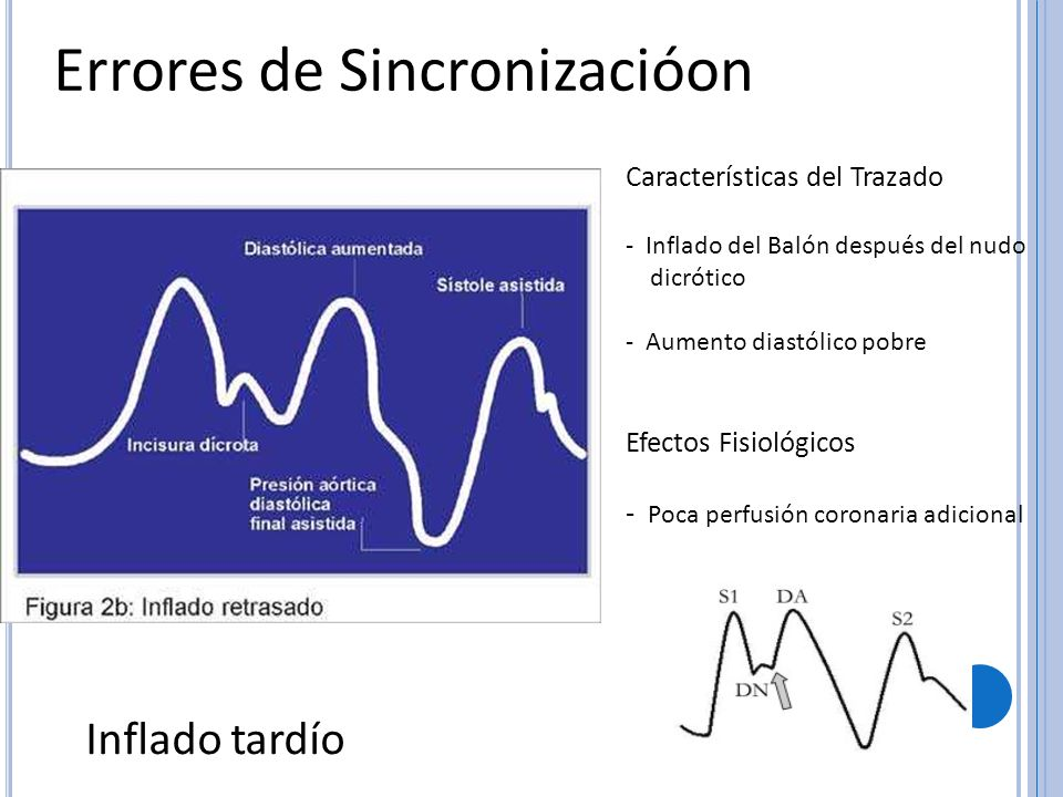 Errores de Sincronizacióon