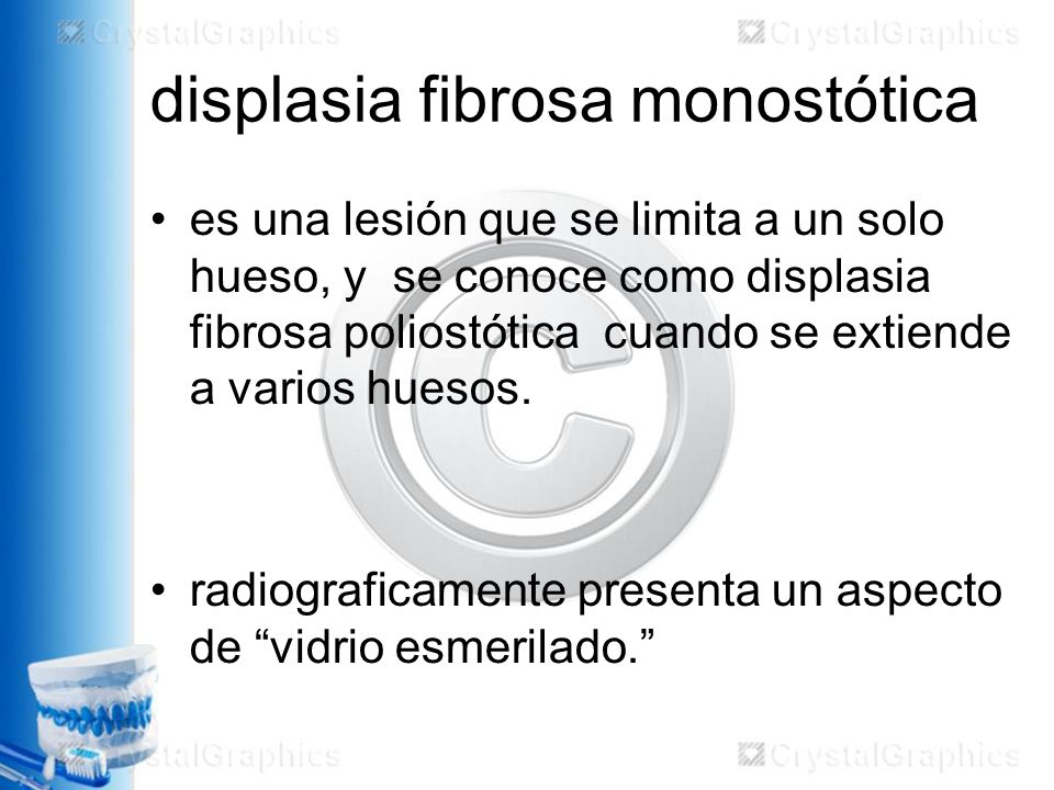 displasia fibrosa monostótica