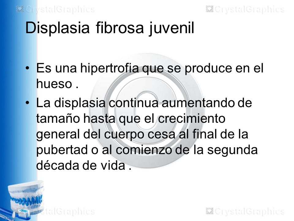 Displasia fibrosa juvenil