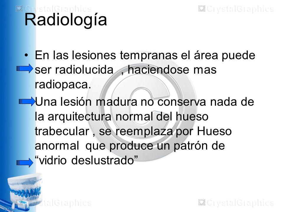 Radiología En las lesiones tempranas el área puede ser radiolucida , haciendose mas radiopaca.