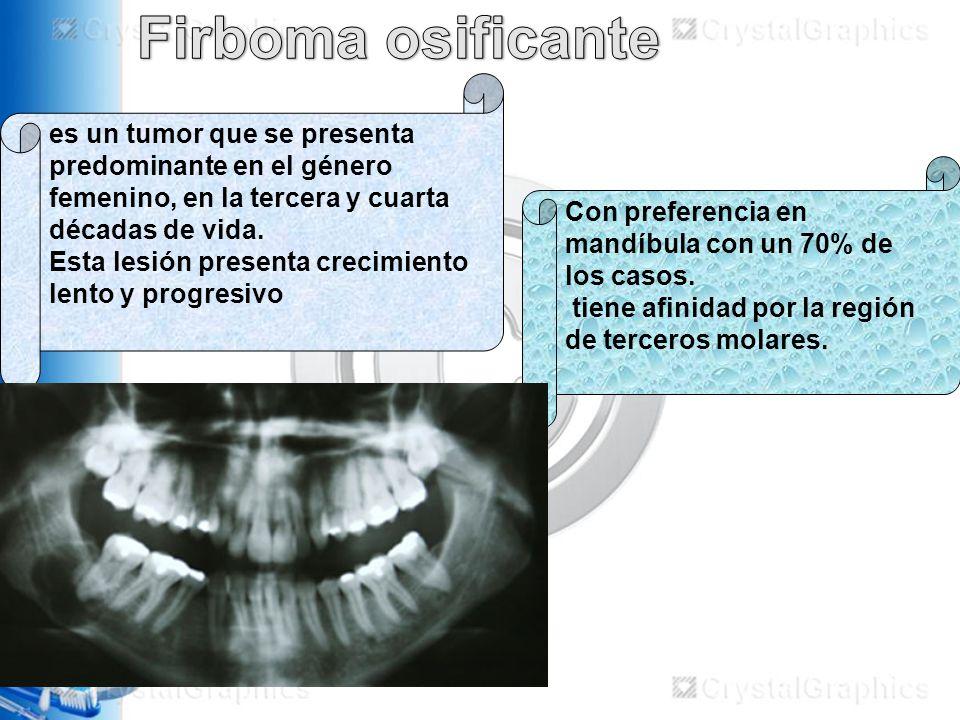 Firboma osificante es un tumor que se presenta predominante en el género femenino, en la tercera y cuarta décadas de vida.