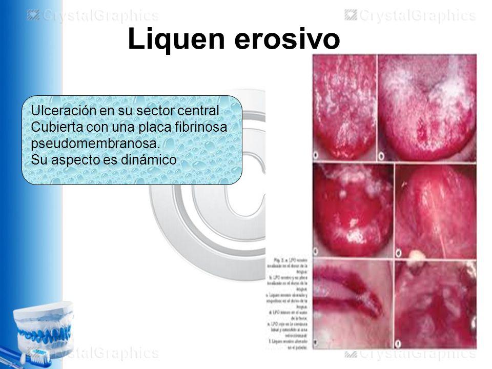 Liquen erosivo Ulceración en su sector central
