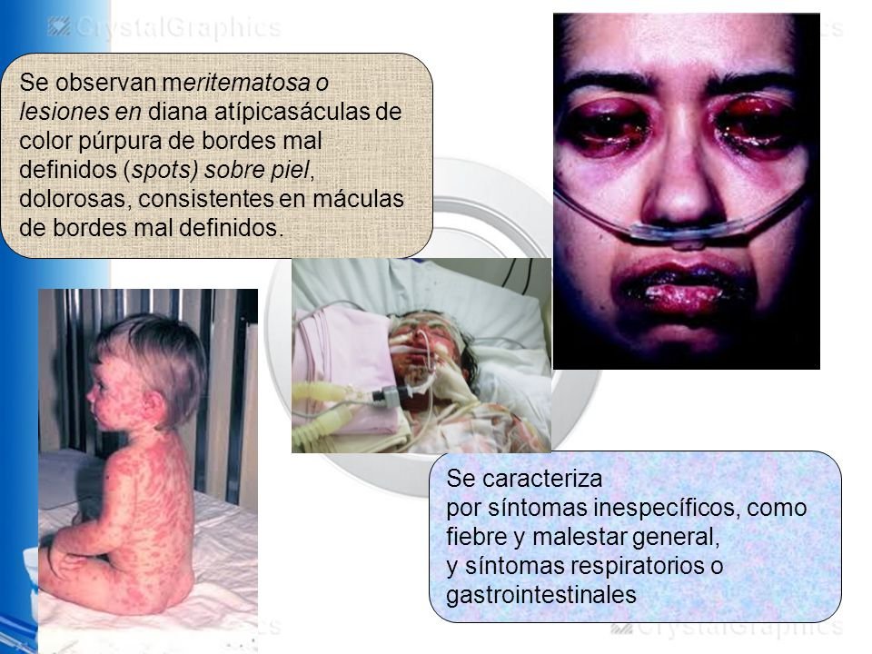 Se observan meritematosa o lesiones en diana atípicasáculas de color púrpura de bordes mal definidos (spots) sobre piel, dolorosas, consistentes en máculas de bordes mal definidos.