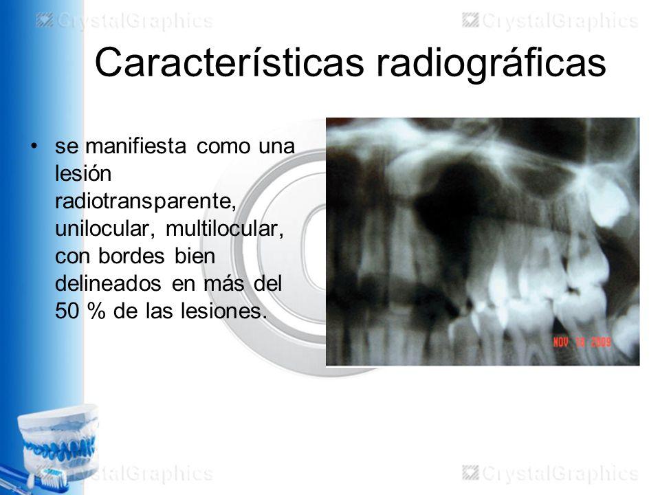 Características radiográficas
