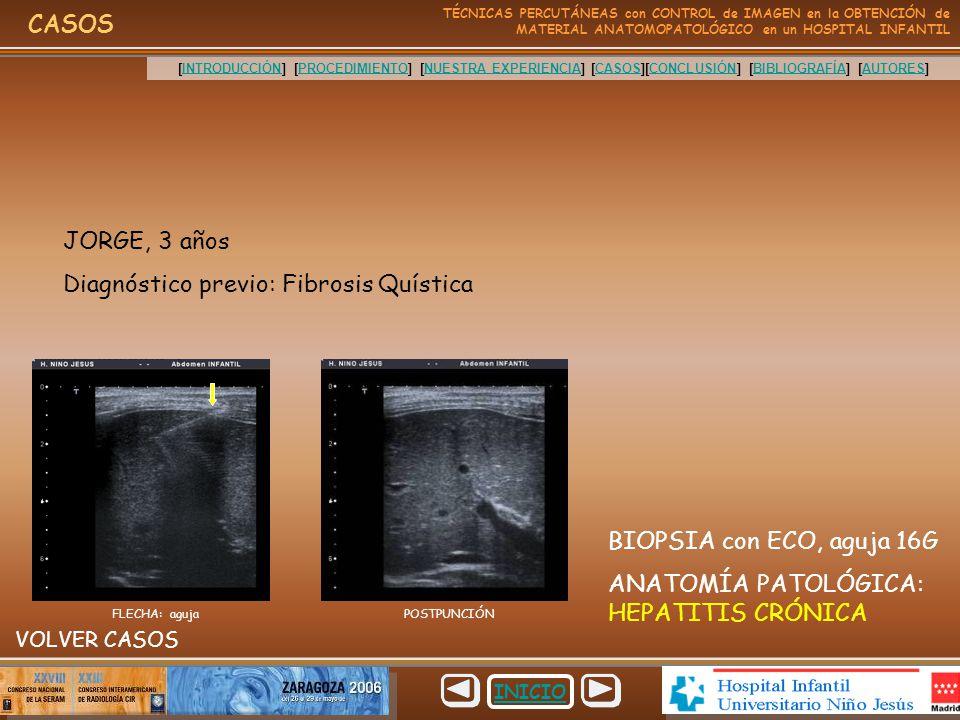 Dorable Anatomía Fibrosis Quística Elaboración - Anatomía de Las ...