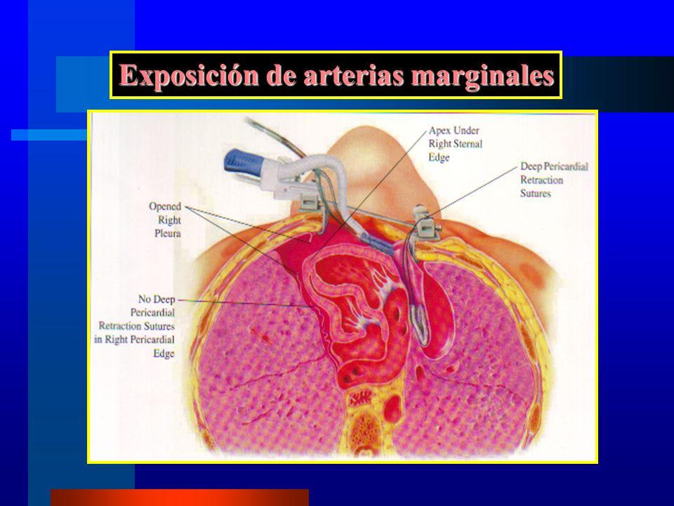 Exposición de arterias marginales