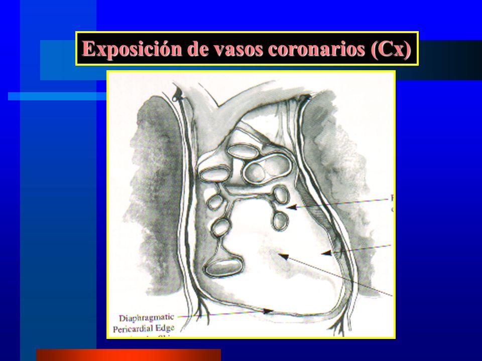 Exposición de vasos coronarios (Cx)