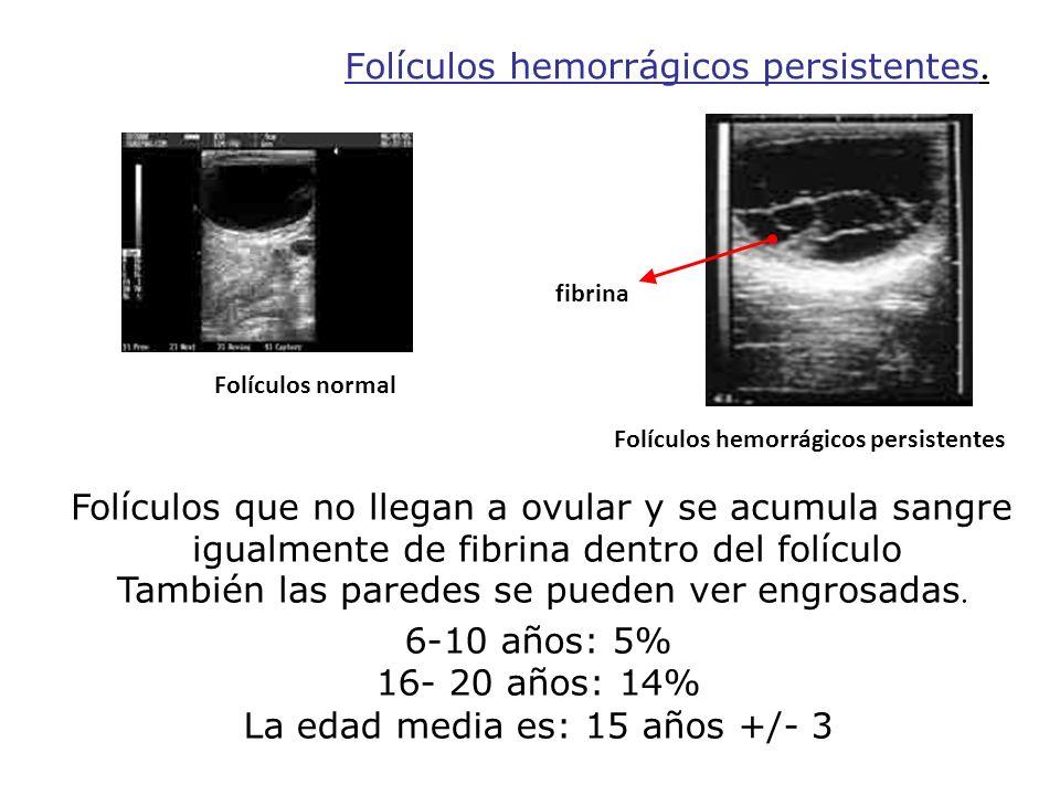 Folículos hemorrágicos persistentes