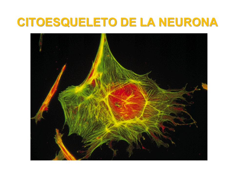 CITOESQUELETO DE LA NEURONA
