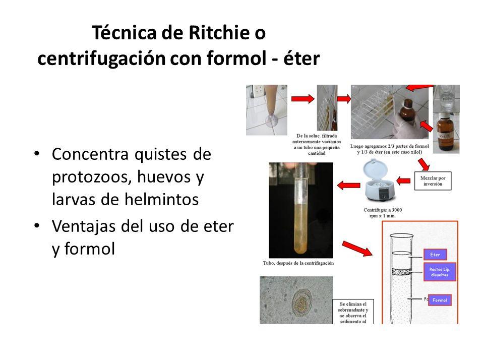 Técnica de Ritchie o centrifugación con formol - éter