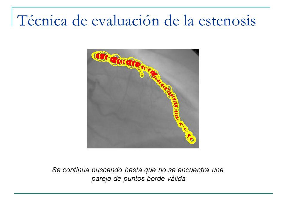 Técnica de evaluación de la estenosis