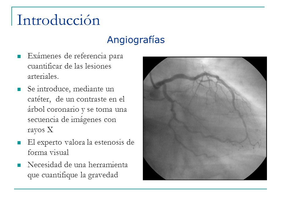 Introducción Angiografías