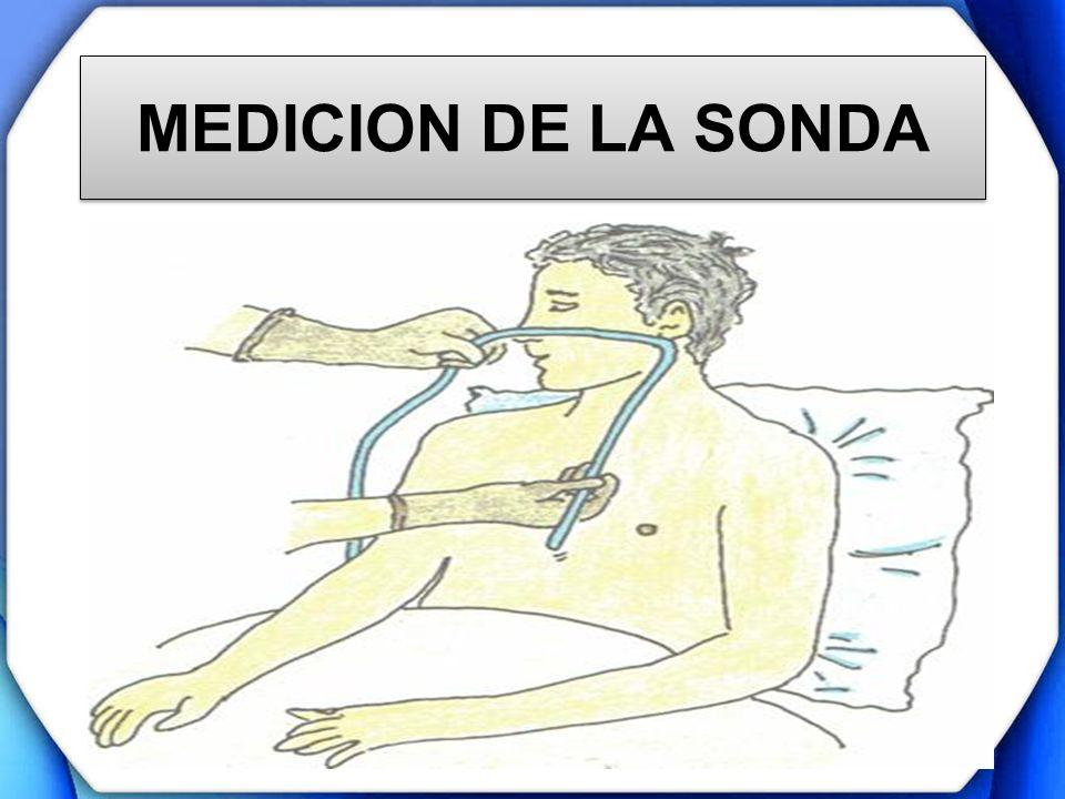 MEDICION DE LA SONDA