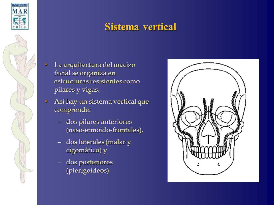Fracturas del macizo facial ppt video online descargar for Paredes orbitarias