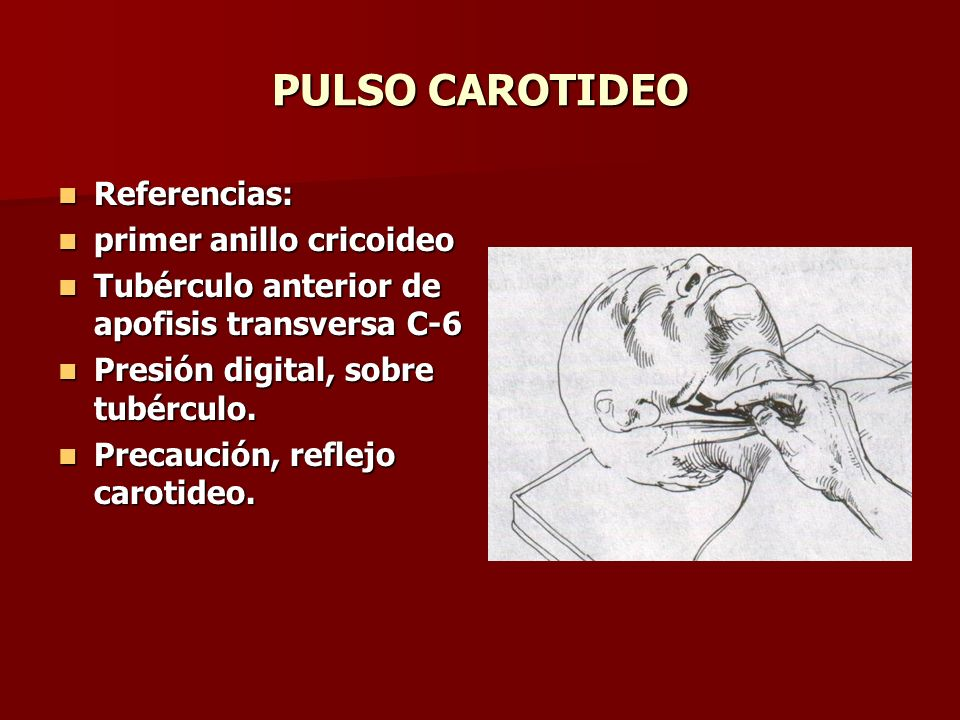 PULSO CAROTIDEO Referencias: primer anillo cricoideo