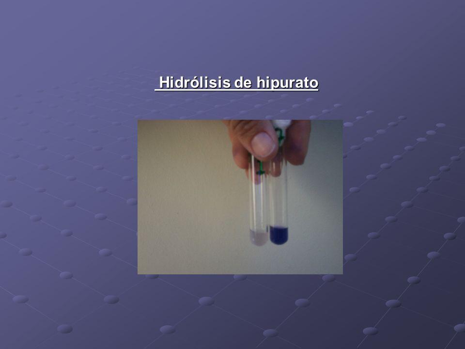 Hidrólisis de hipurato