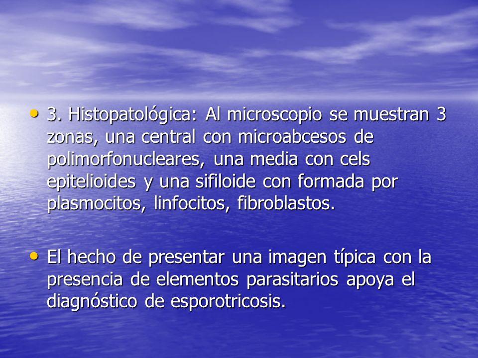 3. Histopatológica: Al microscopio se muestran 3 zonas, una central con microabcesos de polimorfonucleares, una media con cels epitelioides y una sifiloide con formada por plasmocitos, linfocitos, fibroblastos.