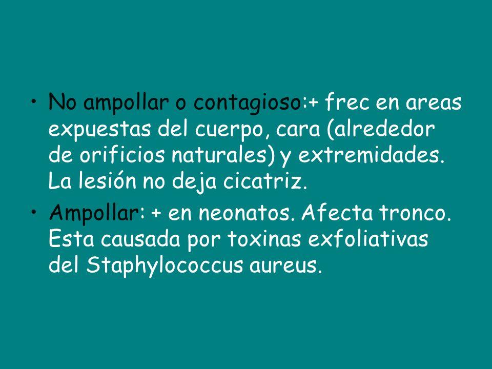 No ampollar o contagioso:+ frec en areas expuestas del cuerpo, cara (alrededor de orificios naturales) y extremidades. La lesión no deja cicatriz.