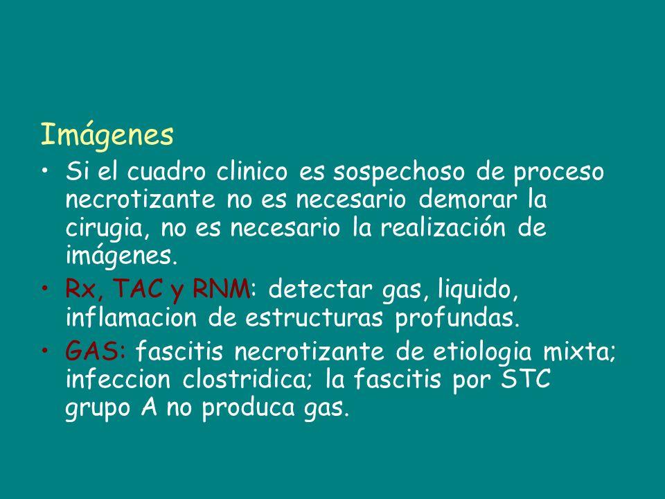 ImágenesSi el cuadro clinico es sospechoso de proceso necrotizante no es necesario demorar la cirugia, no es necesario la realización de imágenes.