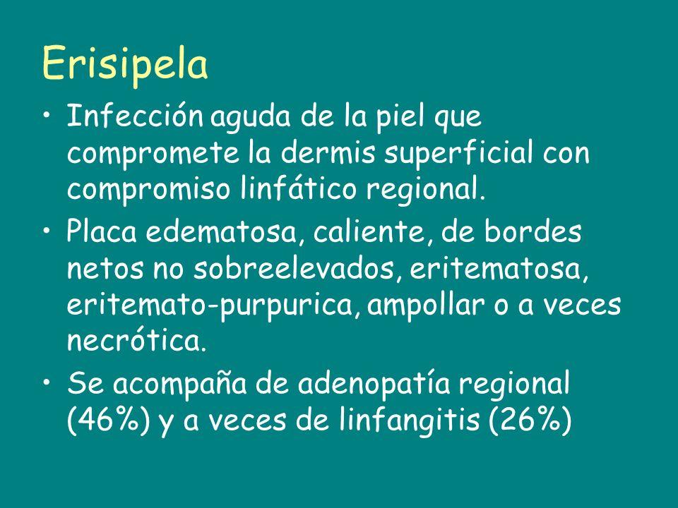 Erisipela Infección aguda de la piel que compromete la dermis superficial con compromiso linfático regional.