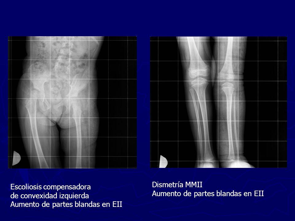 Dismetría MMII Aumento de partes blandas en EII. Escoliosis compensadora. de convexidad izquierda.