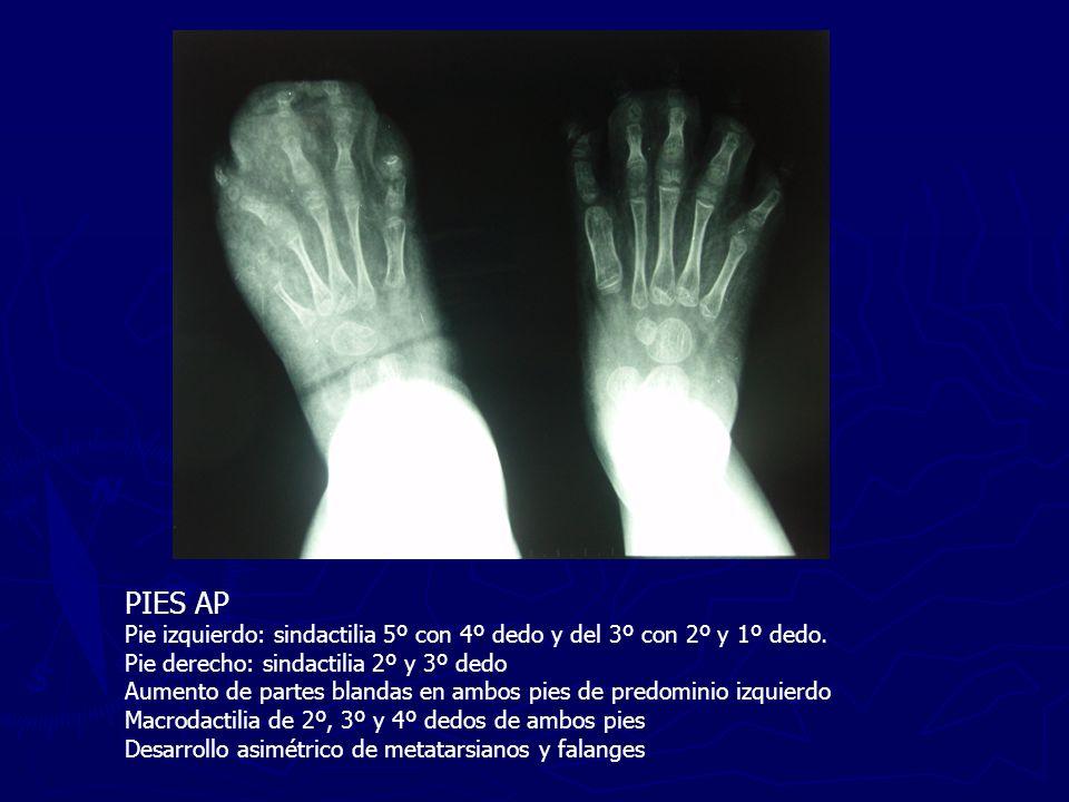 PIES AP Pie izquierdo: sindactilia 5º con 4º dedo y del 3º con 2º y 1º dedo. Pie derecho: sindactilia 2º y 3º dedo.