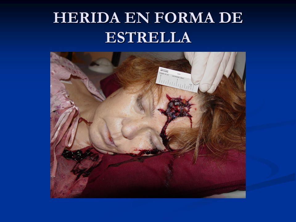 HERIDA EN FORMA DE ESTRELLA