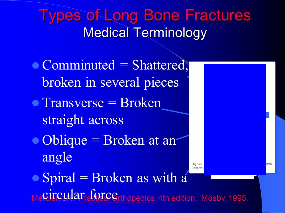 Types of Long Bone Fractures Medical Terminology