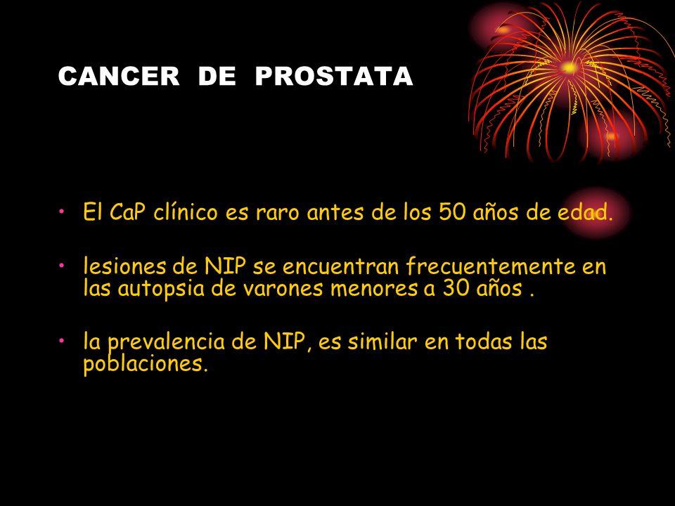 CANCER DE PROSTATAEl CaP clínico es raro antes de los 50 años de edad.