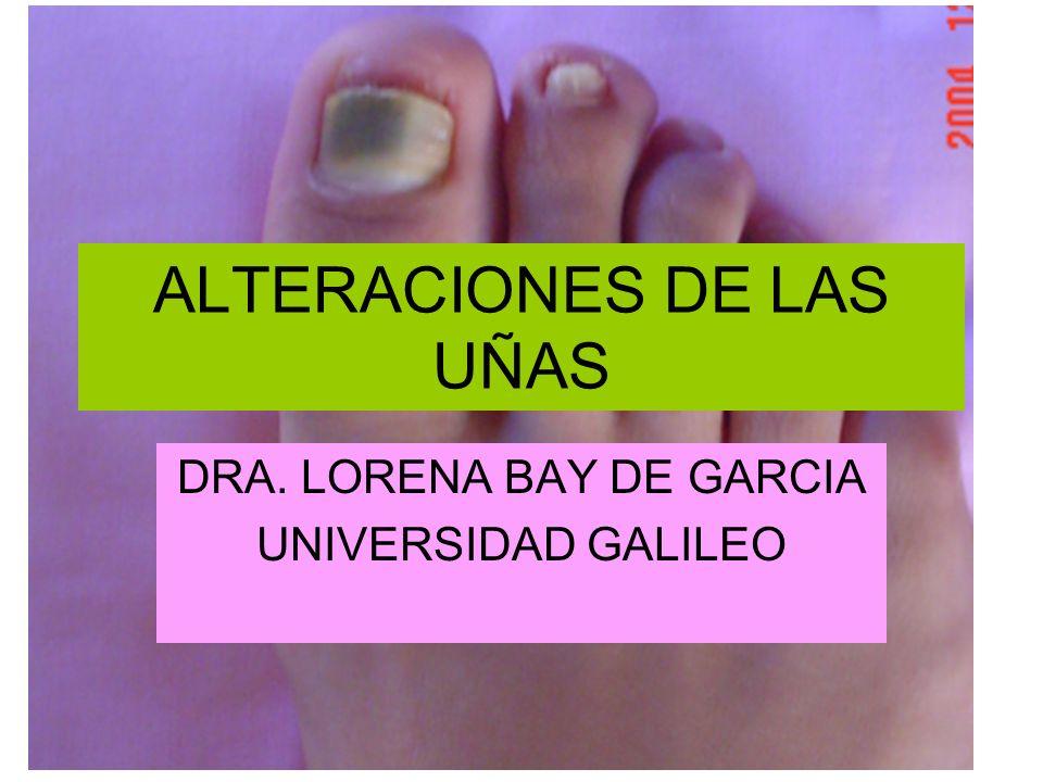 ALTERACIONES DE LAS UÑAS - ppt video online descargar