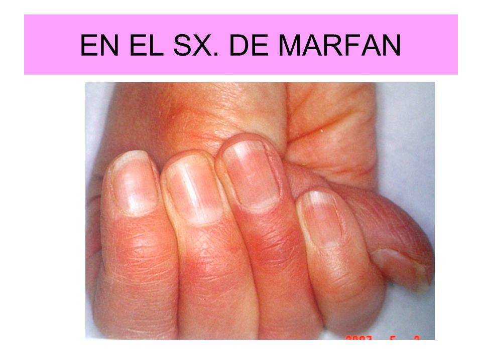 EN EL SX. DE MARFAN