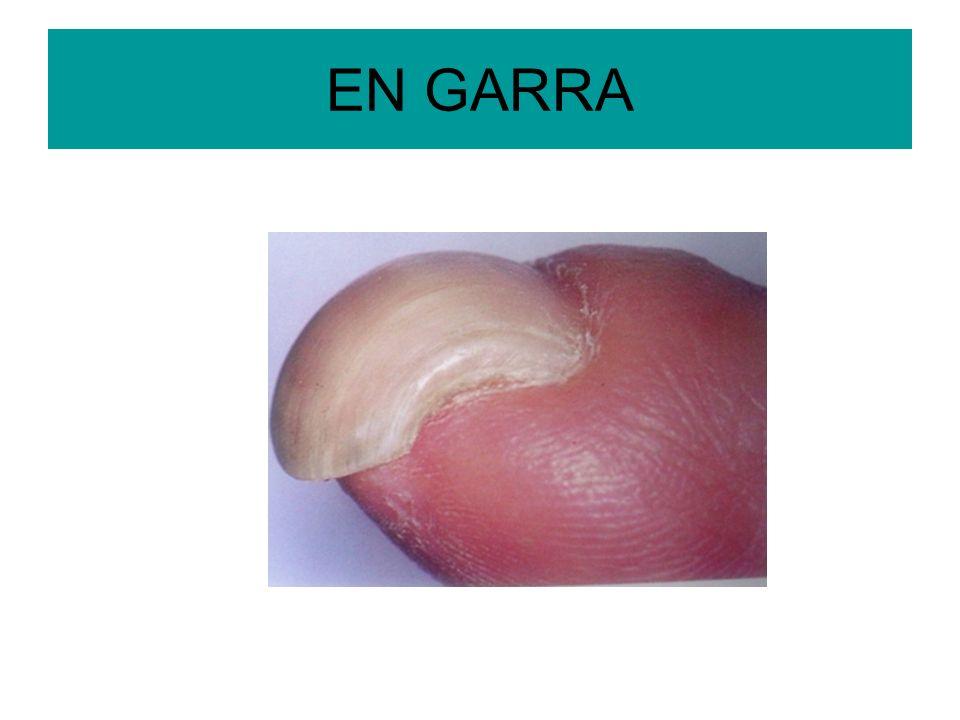 EN GARRA